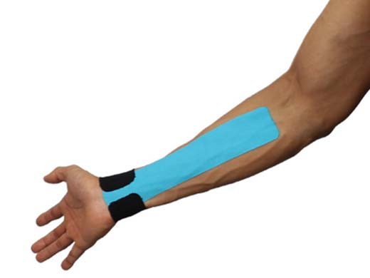 SportsTex Tennis Elbow Tape Application
